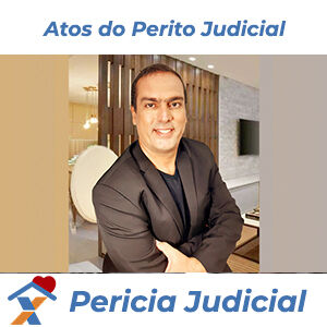 Atos do Perito Judicial